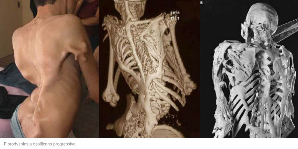 The Results of Stone Man Syndrome