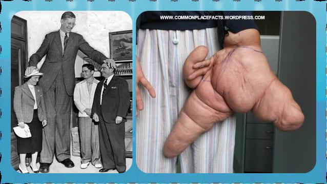 world's largest hand Robert Wadlow Lui Hua