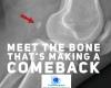 #Fabella #anatomy #bones